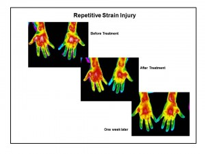 Thermography can be used to monitor treatment progress